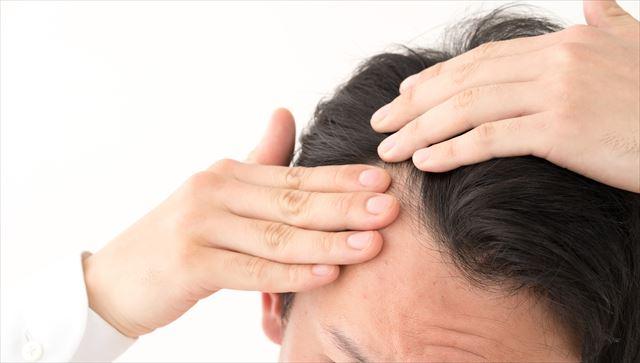 薄毛が気になる人はagaかも?!原因や対策、食生活との関係を解説します!